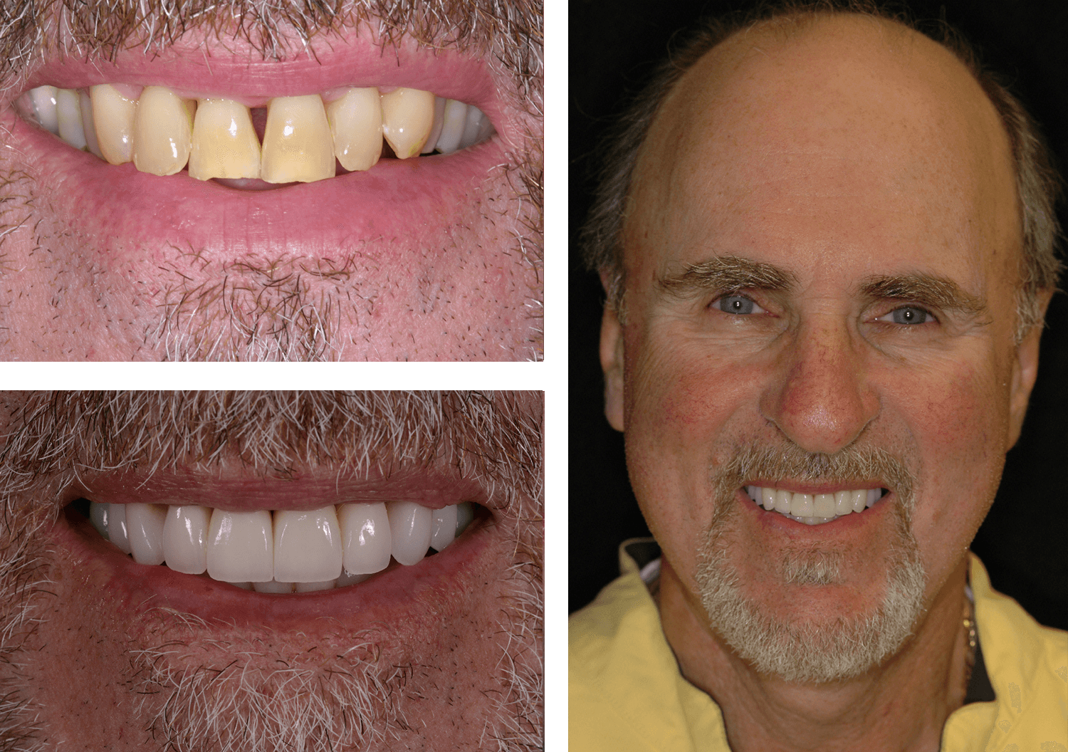 Before and After Image of Lerner & Lemongello
